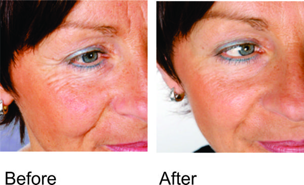 photo of before and after red light therapy
