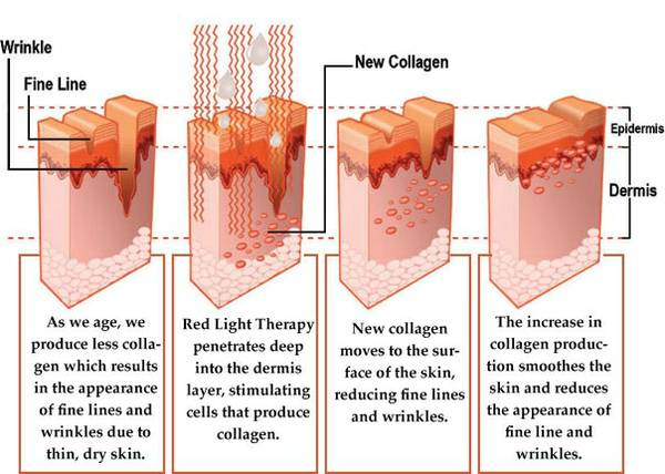 graph of results of red light therapy